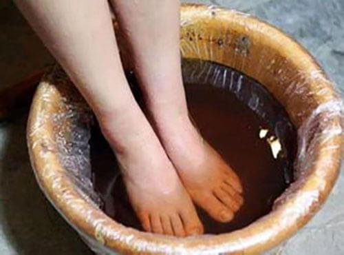 脚气用什么泡脚能根除