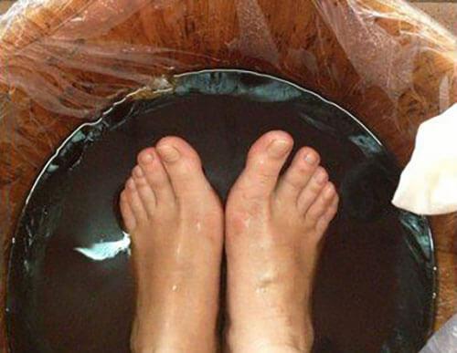 醋泡脚的正确方法